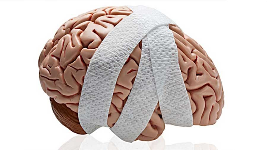 Los Mejores Abogados en Español de Lesiones Cerebrales Para Mayor Compensación en Monrovia California